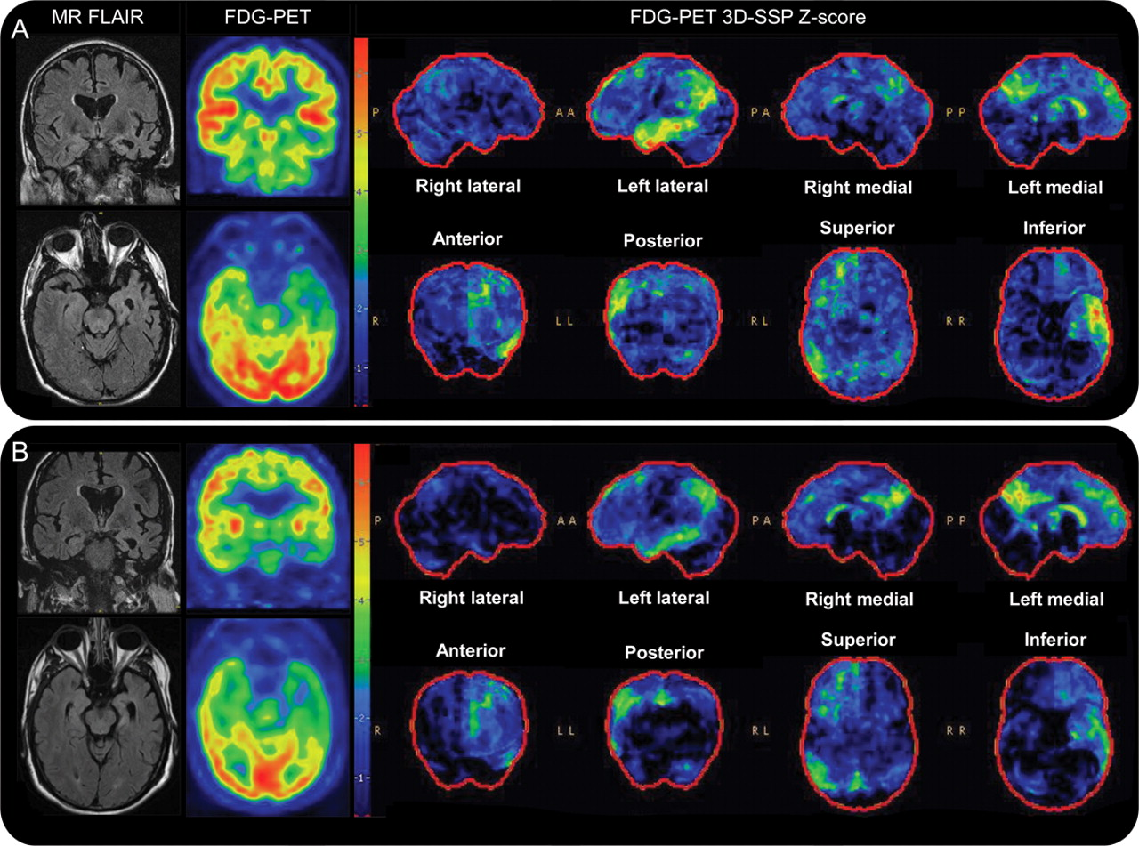similar clinical and neuroimaging features in monozygotic twin pair