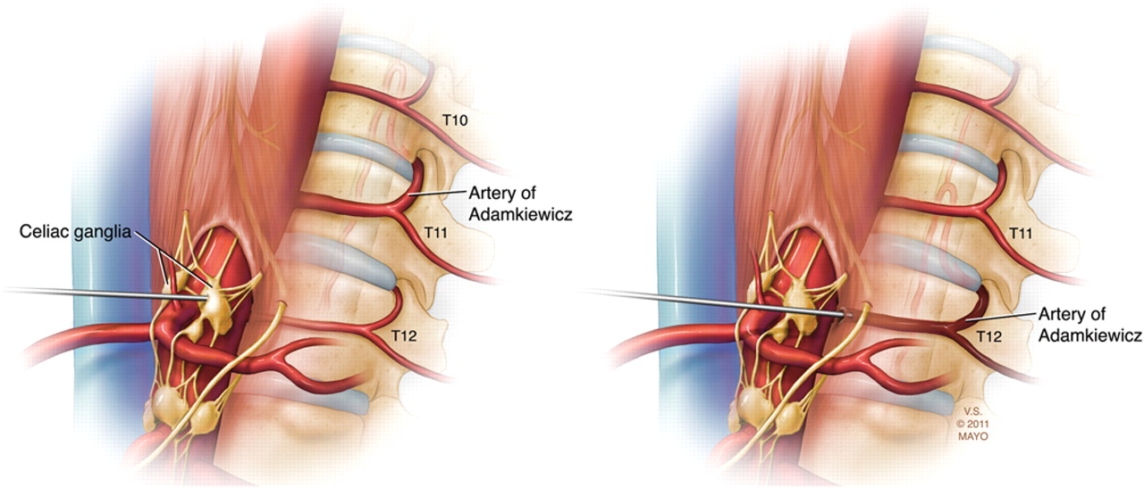 Pearls Oy Sters Acute Spinal Cord Infarction Following Endoscopic