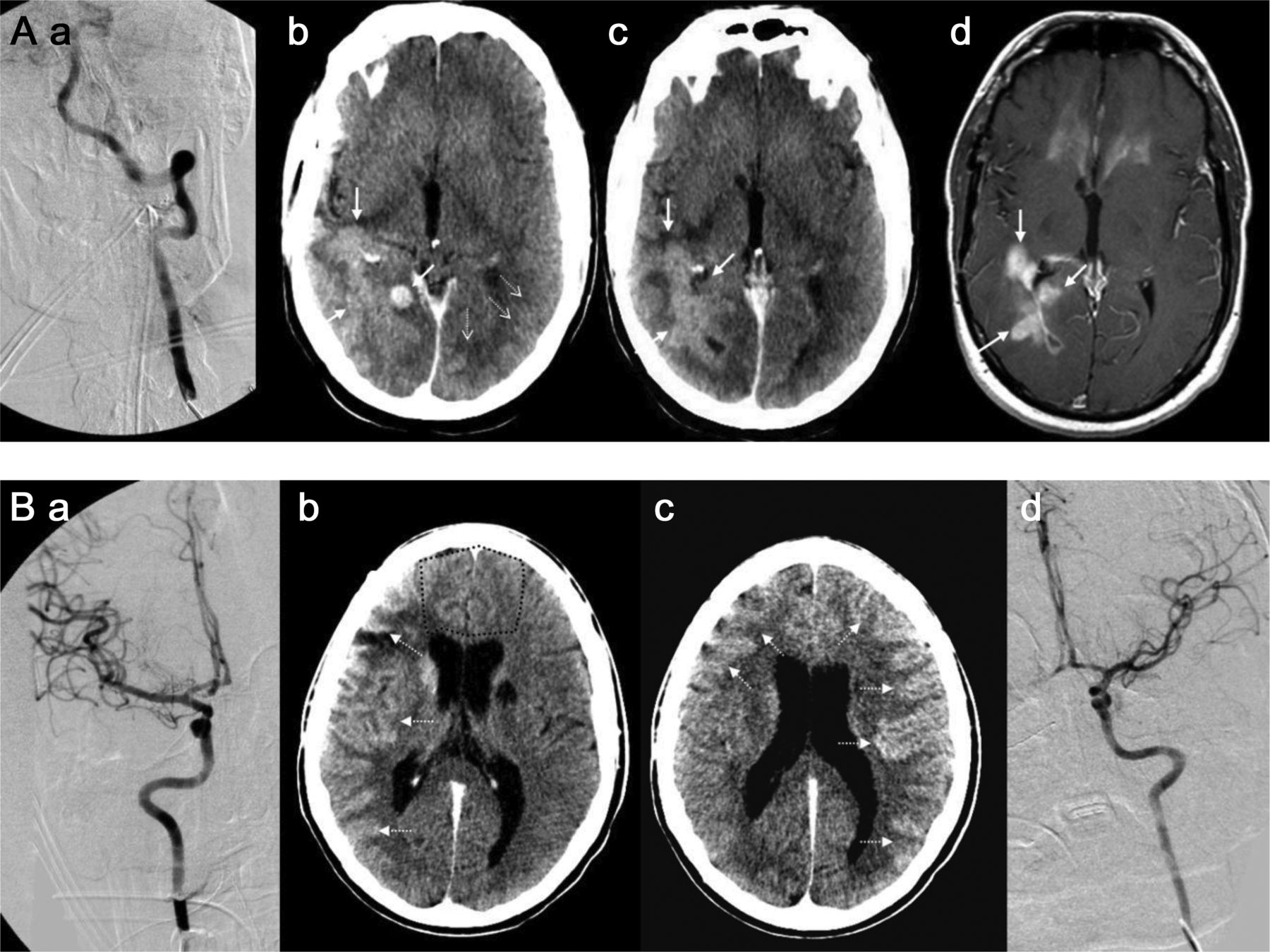 Blood–brain barrier, reperfusion injury, and hemorrhagic ...