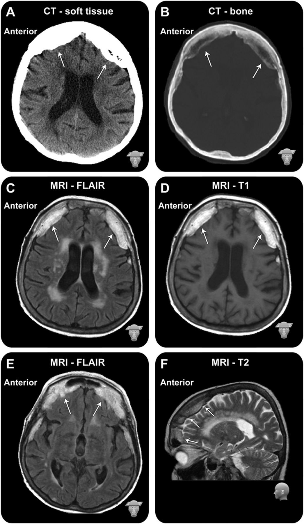 Transcortical motor aphasia and unilateral parkinsonism in a case ...