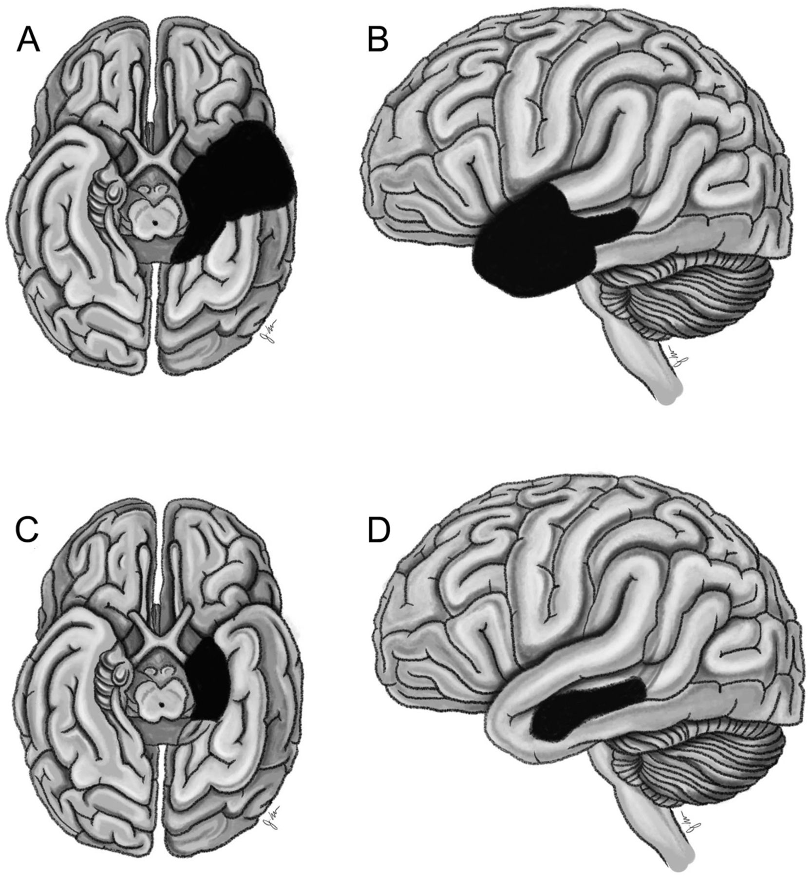 Outcomes for temporal lobe epilepsy operations may not be equal ...