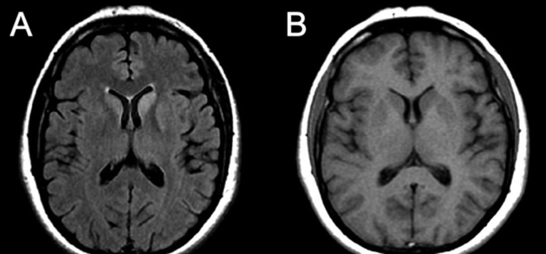 teaching neuroimages pseudohypertrophic cerebral cortex