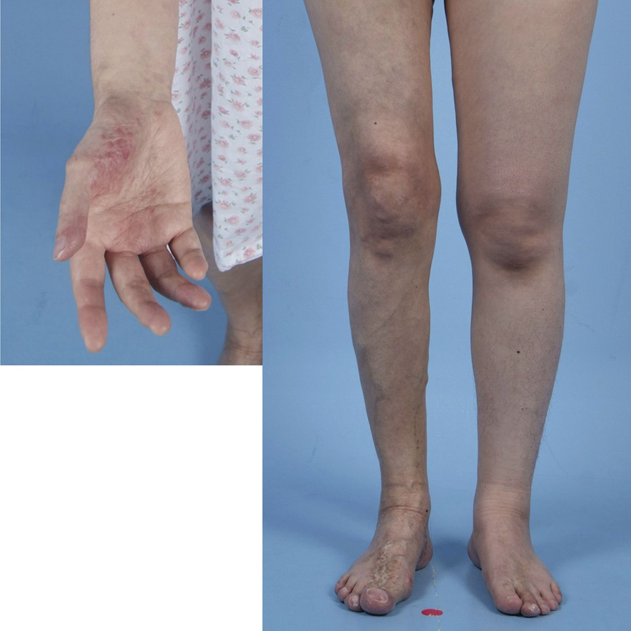 What is the Klippel-Weber-Trenone Syndrome