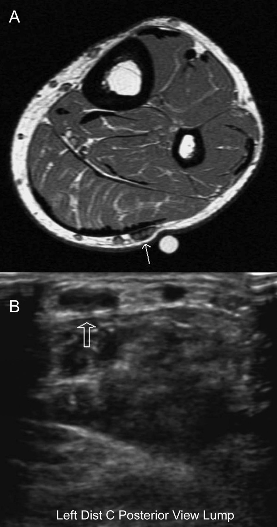 1 Mri And Nerve Ultrasound