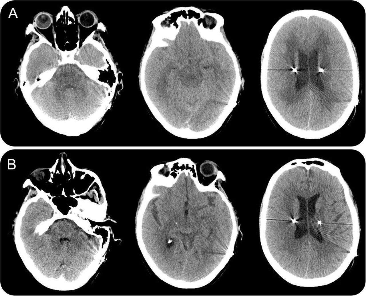 teaching neuroimages  massive cerebral edema after ct