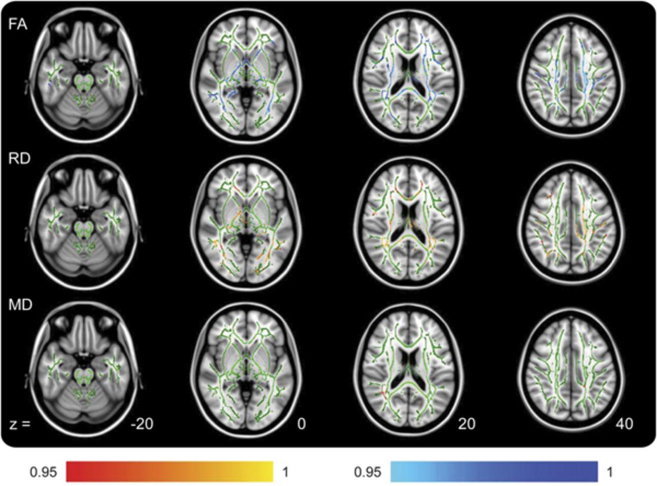 hold test neurology