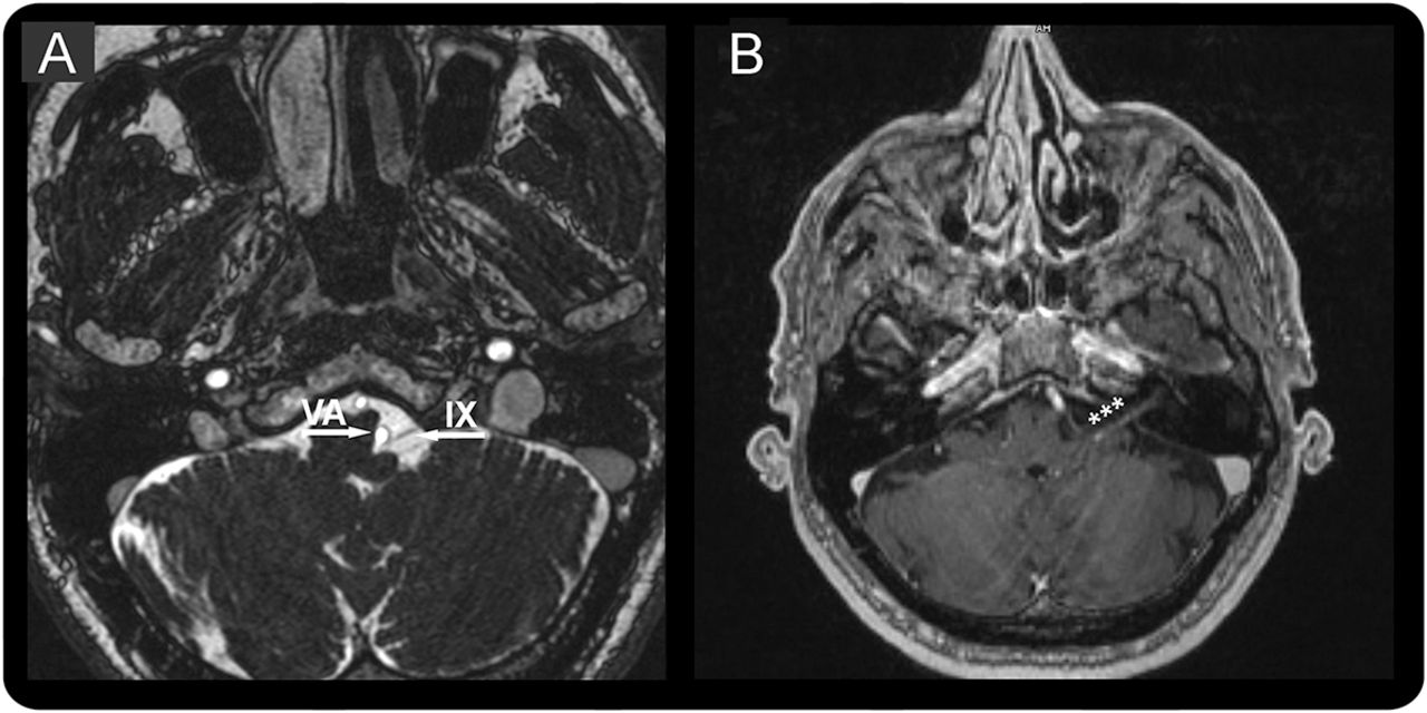 Glossopharyngeal nerve contrast enhancement in recent-onset ...