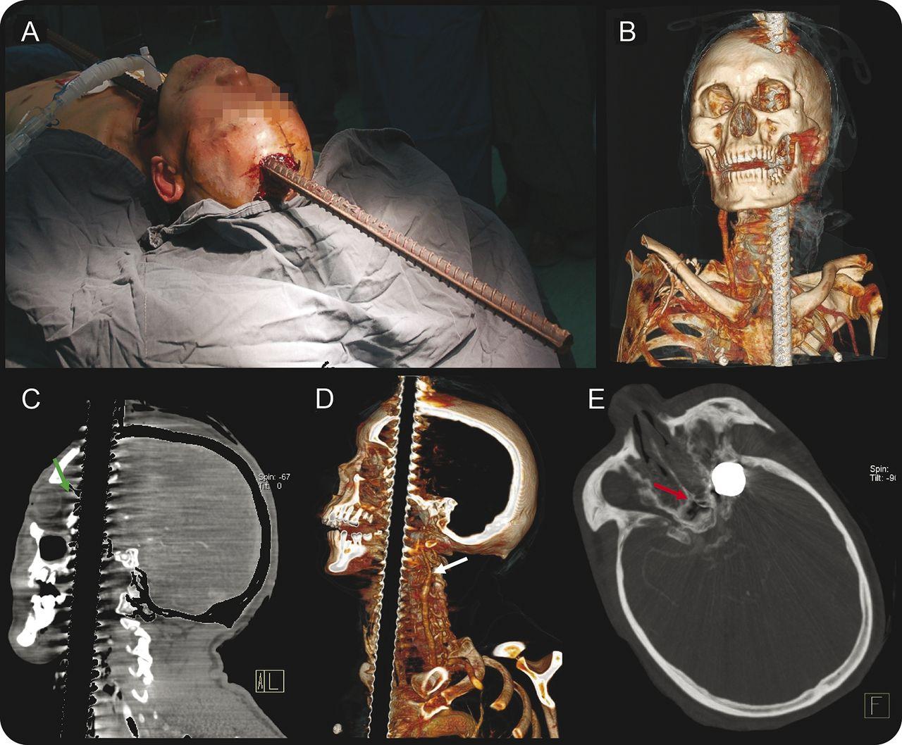 twisted steel u2013induced penetrating head injury