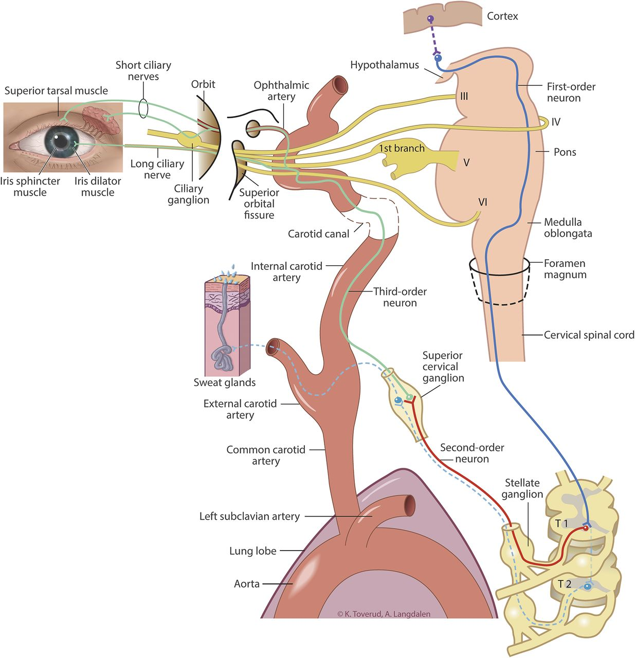 Clinical Reasoning: Partial Horner syndrome and upper right limb ...