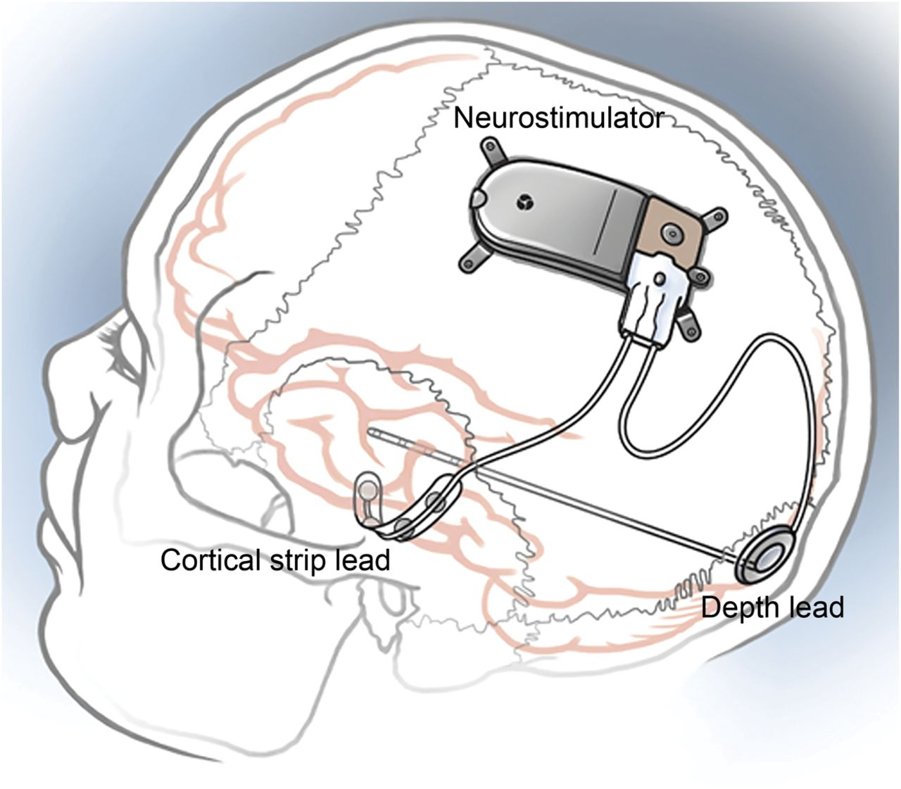 Long Term Treatment With Responsive Brain Stimulation In Adults F250 7 3l Rss Wiring Diagram Download Figure