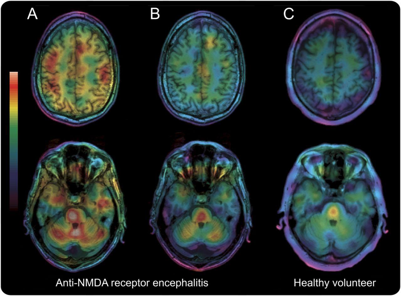 Anti-NMDA receptor encephalitis