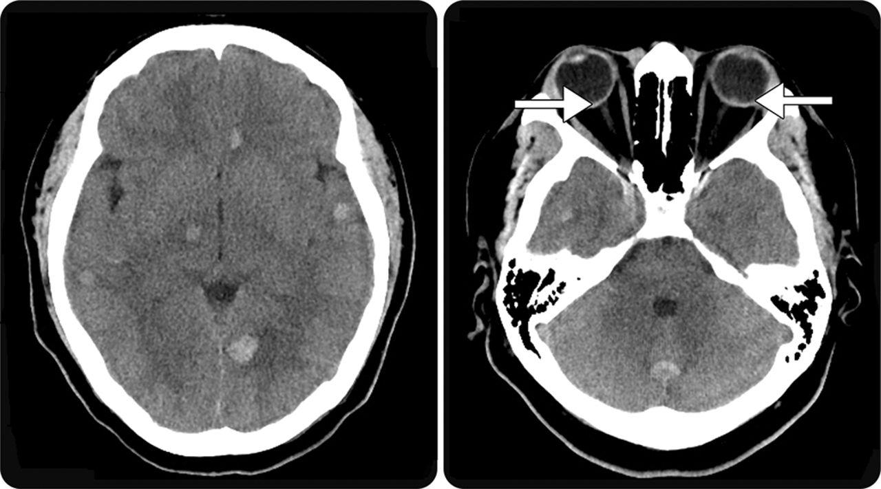 retinal and intracranial hemorrhage in acute leukemic