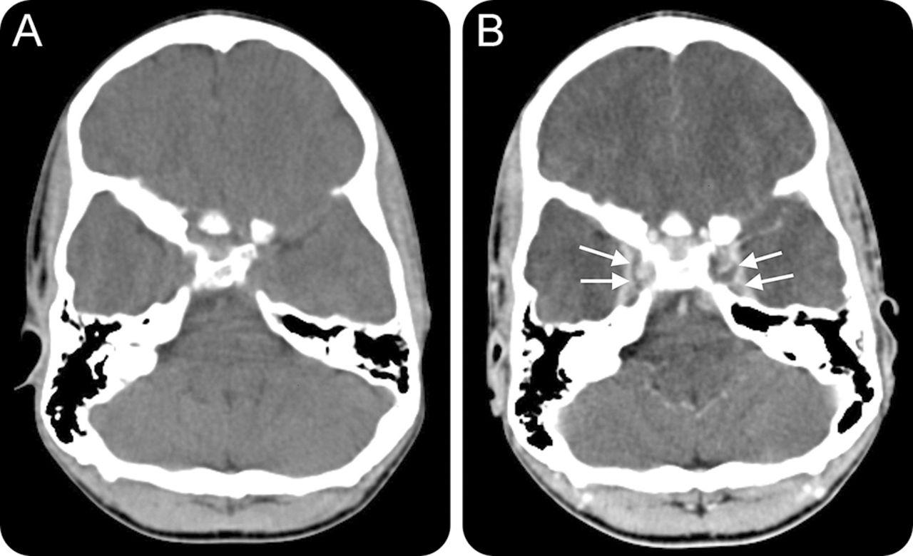 cavernous sinus thrombosis - Vatoz.atozdevelopment.co