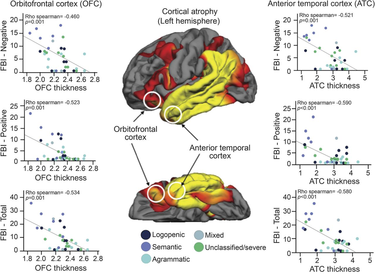 Frontotemporal networks and behavioral symptoms in primary
