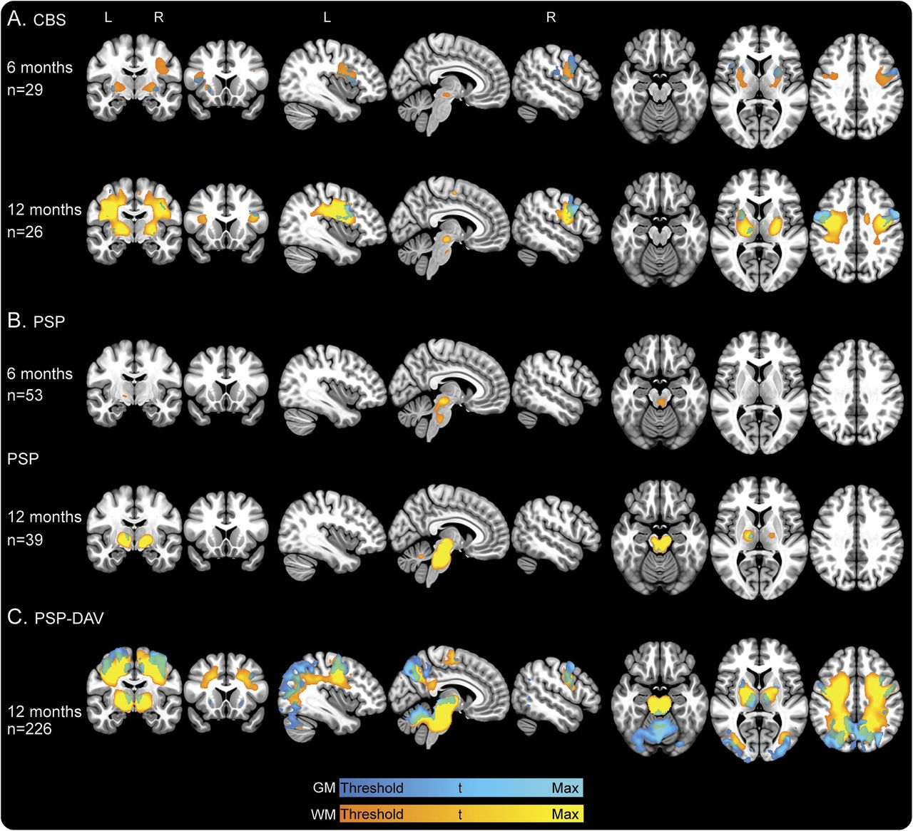 Progression of brain atrophy in PSP and CBS over 6 months