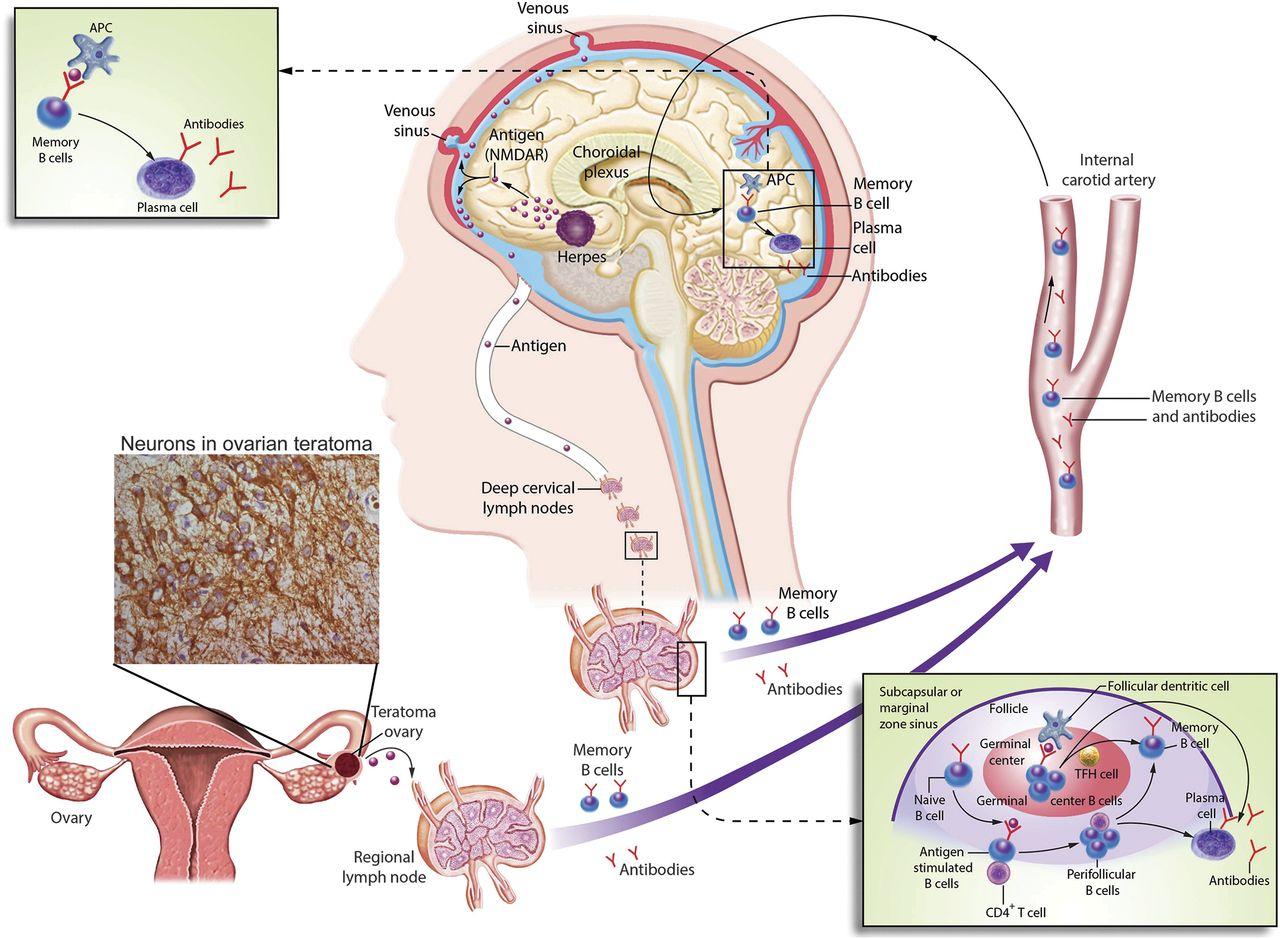 Nmda Receptor Encephalitis And Other Antibody Mediated Disorders
