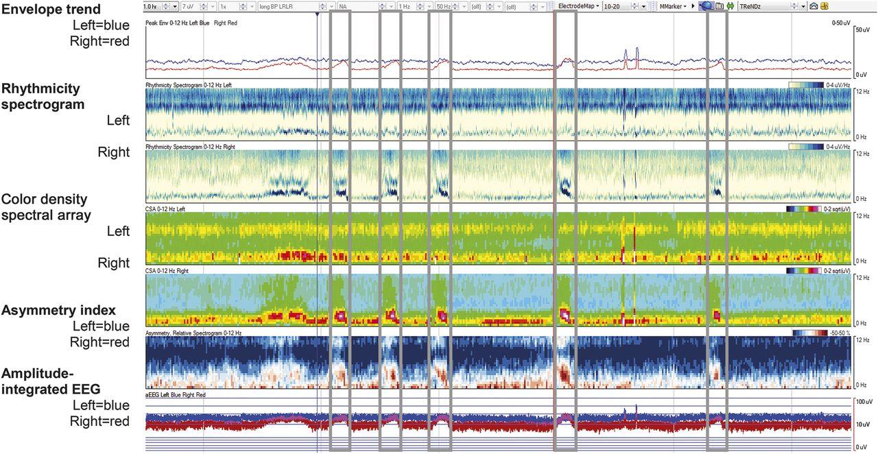 Sensitivity of quantitative EEG for seizure identification