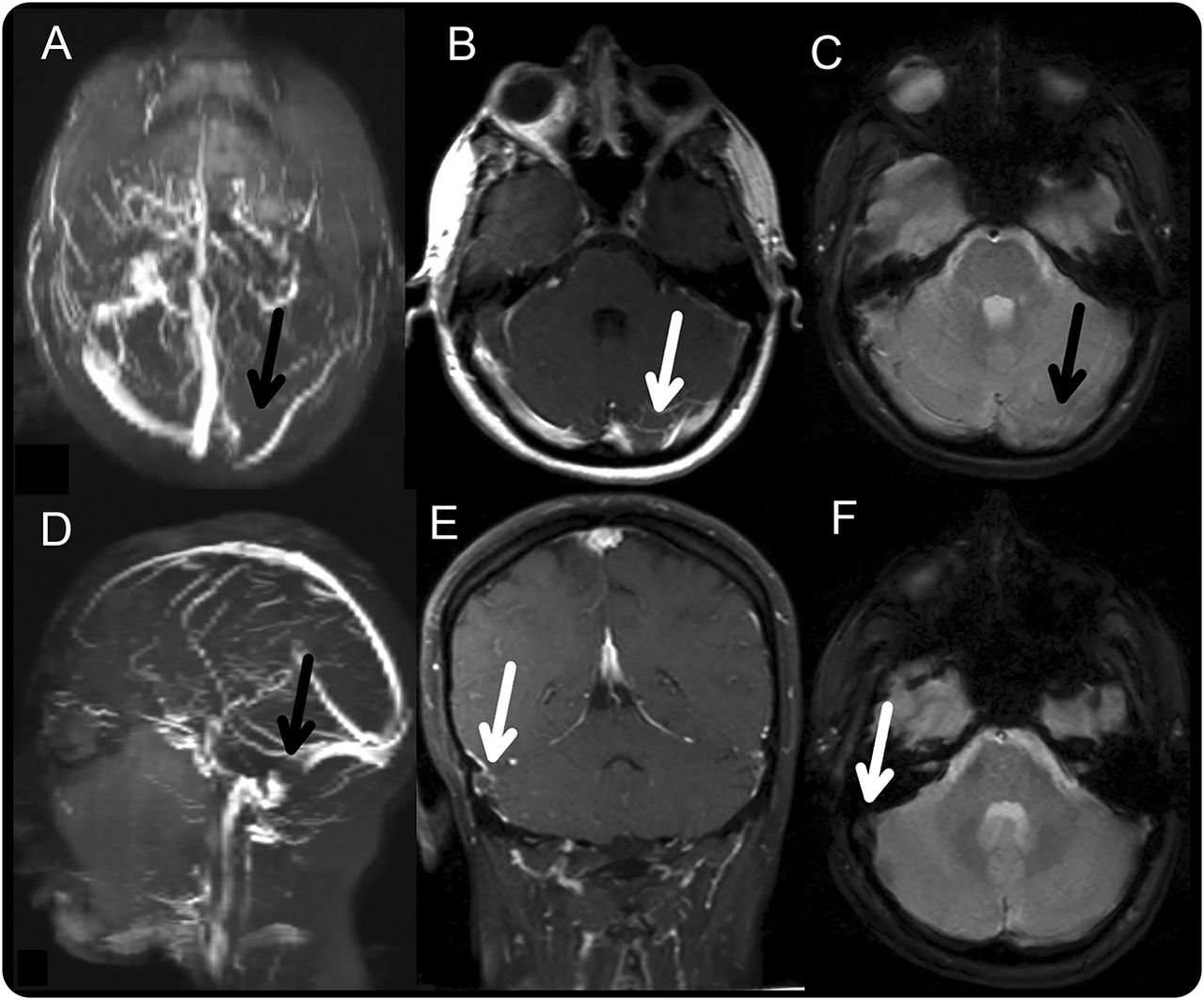 Clinical Reasoning: A young woman with progressive headache and