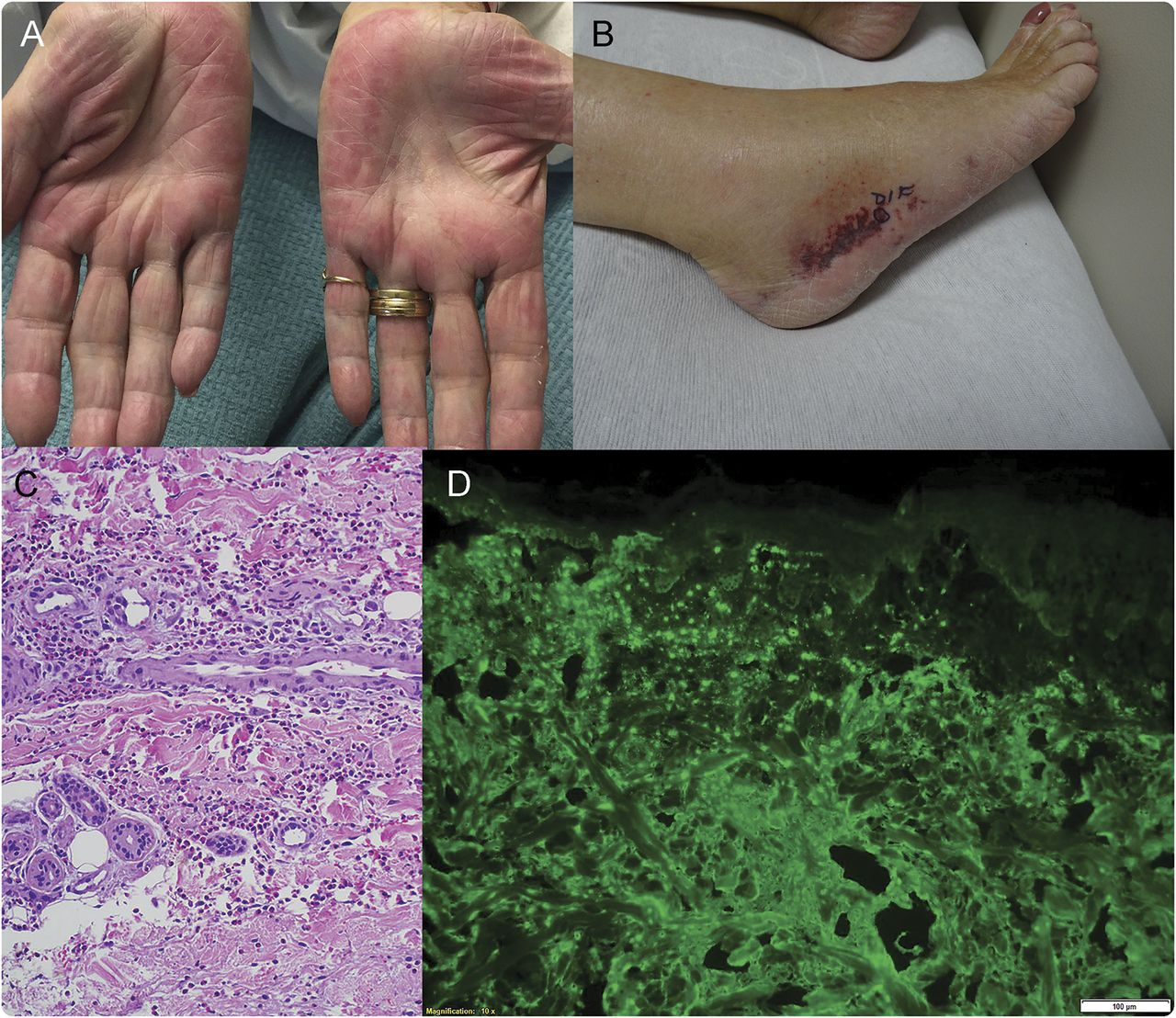 Clinical Reasoning A 74 Year Old Woman With Bilateral Foot