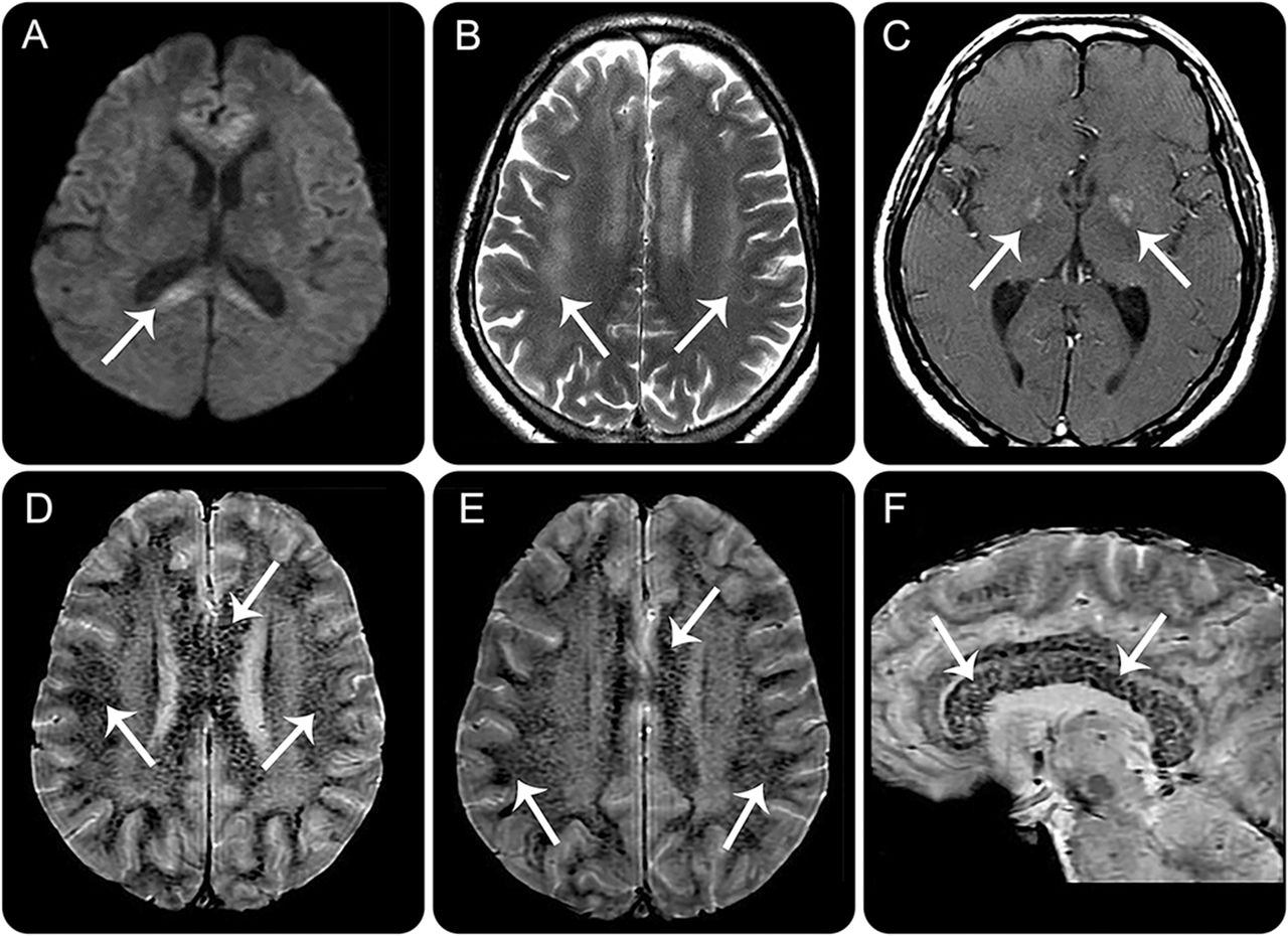 teaching neuroimages  typical neuroimaging features in