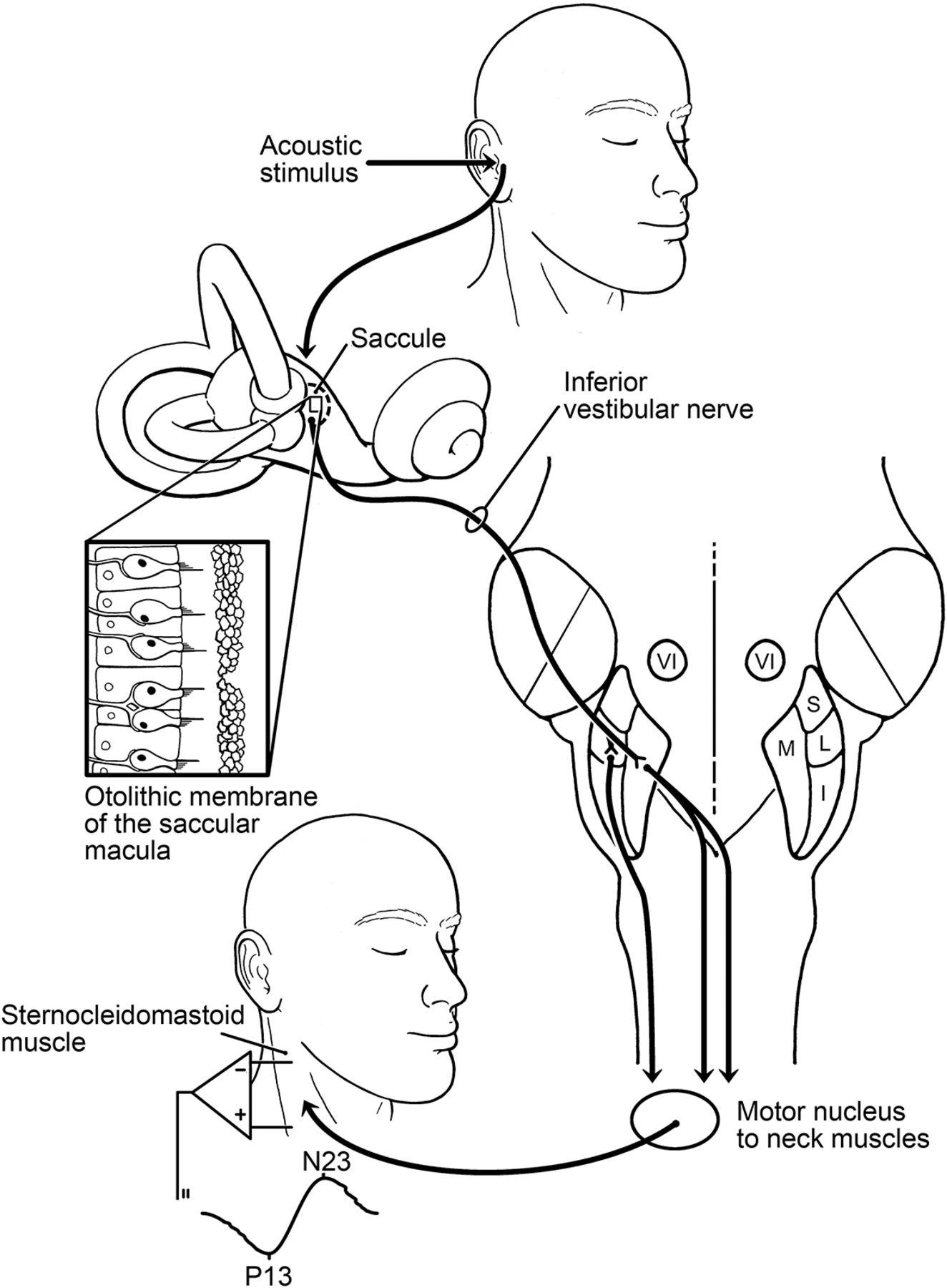 Practice guideline: Cervical and ocular vestibular evoked