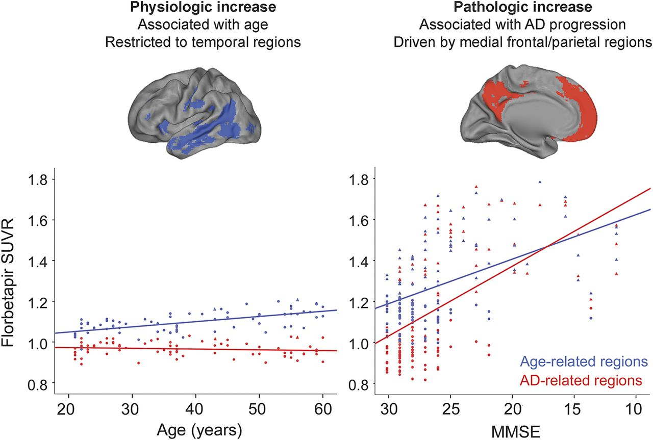 Increased florbetapir binding in the temporal neocortex from age 20