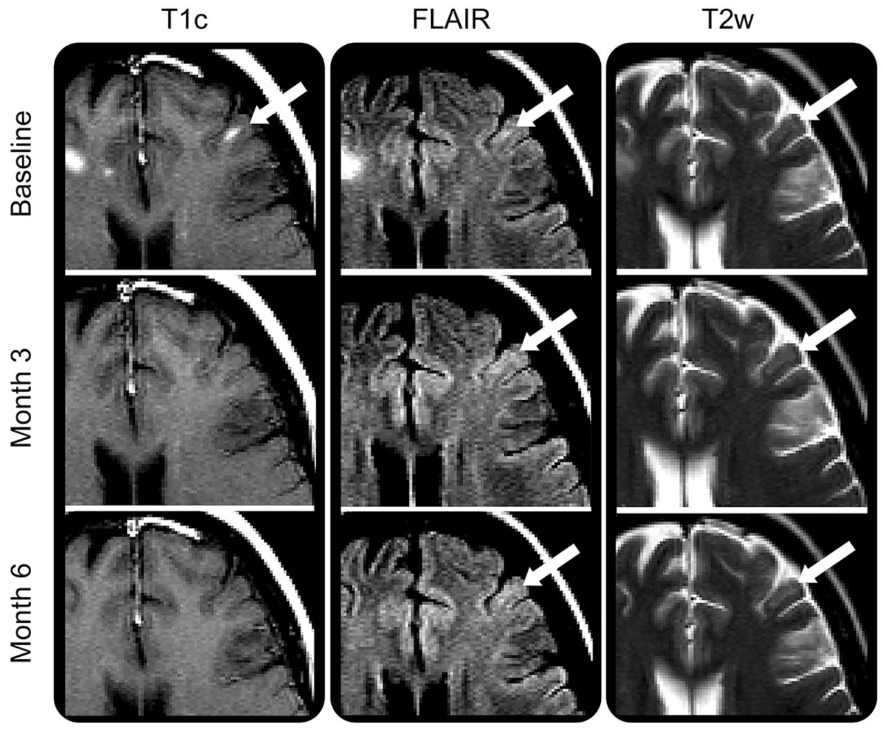 MRI evidence of acute inflammation in leukocortical lesions