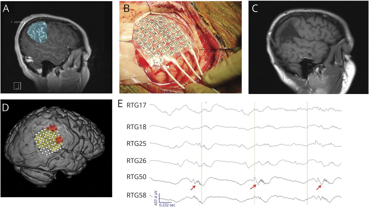 High-frequency oscillations in awake patients undergoing brain tumor ...