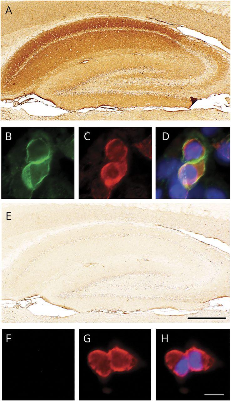Encephalitis with mGluR5 antibodies | Neurology