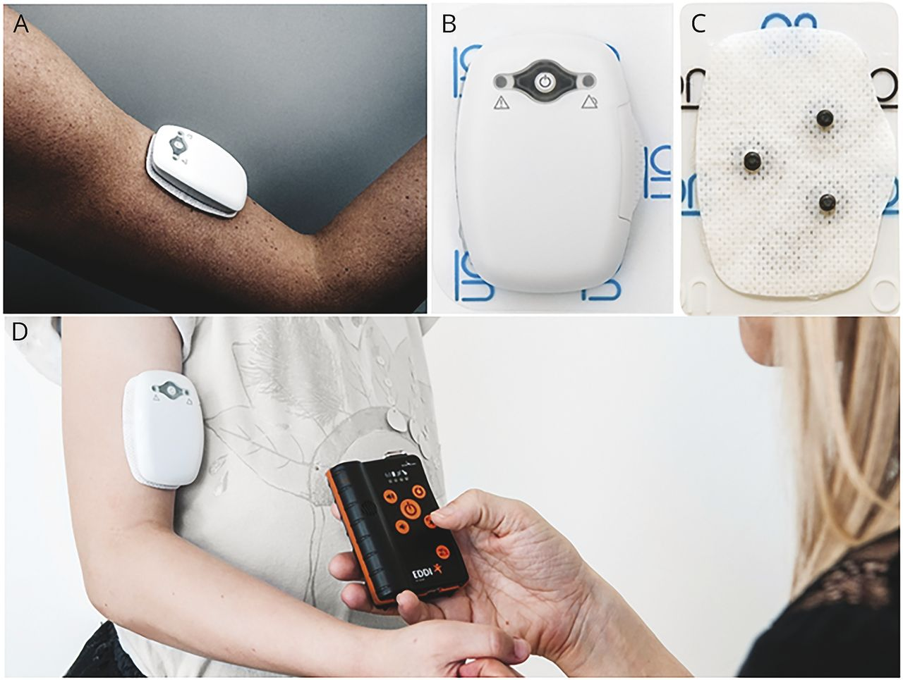 Automated real-time detection of tonic-clonic seizures using a wearable EMG  device | Neurology