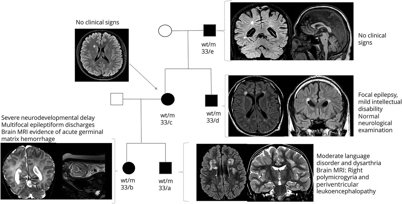 Neurologic phenotypes associated with COL4A1/2 mutations
