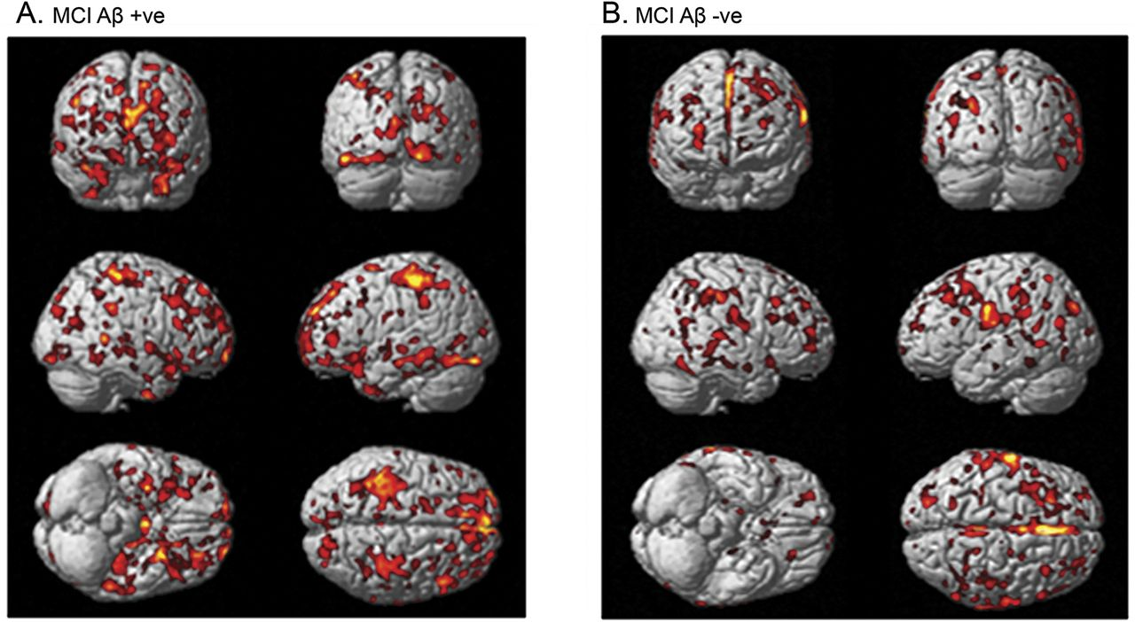 Gray Matter Density Increases During >> Microglial Activation In Early Alzheimer Trajectory Is Associated