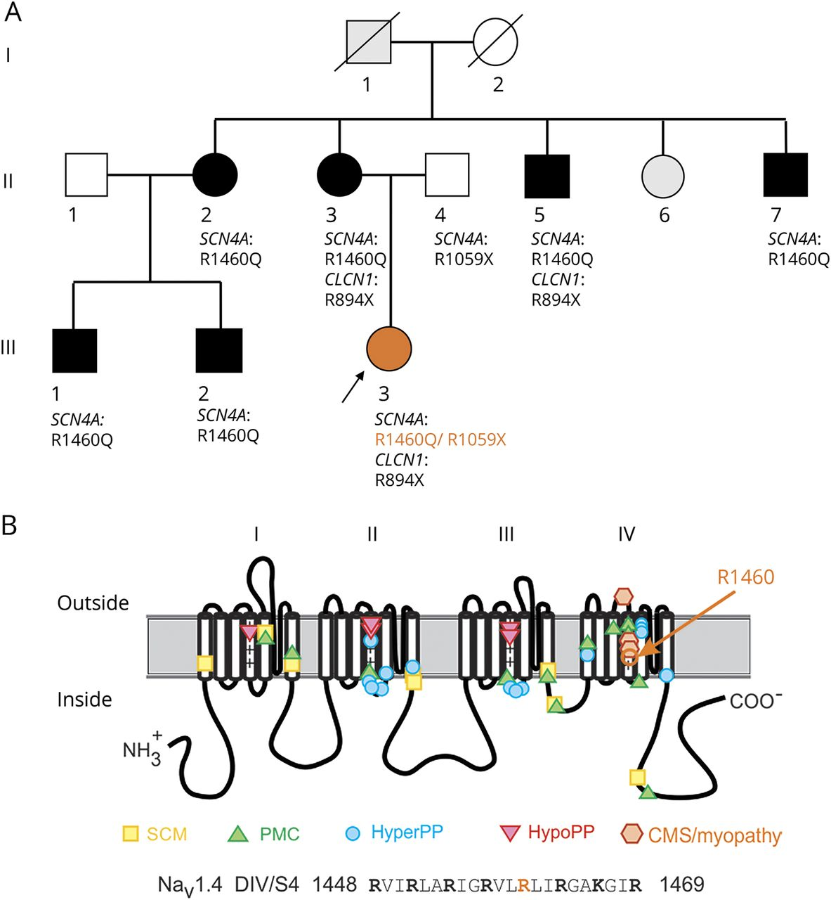 Myasthenic congenital myopathy from recessive mutations at a