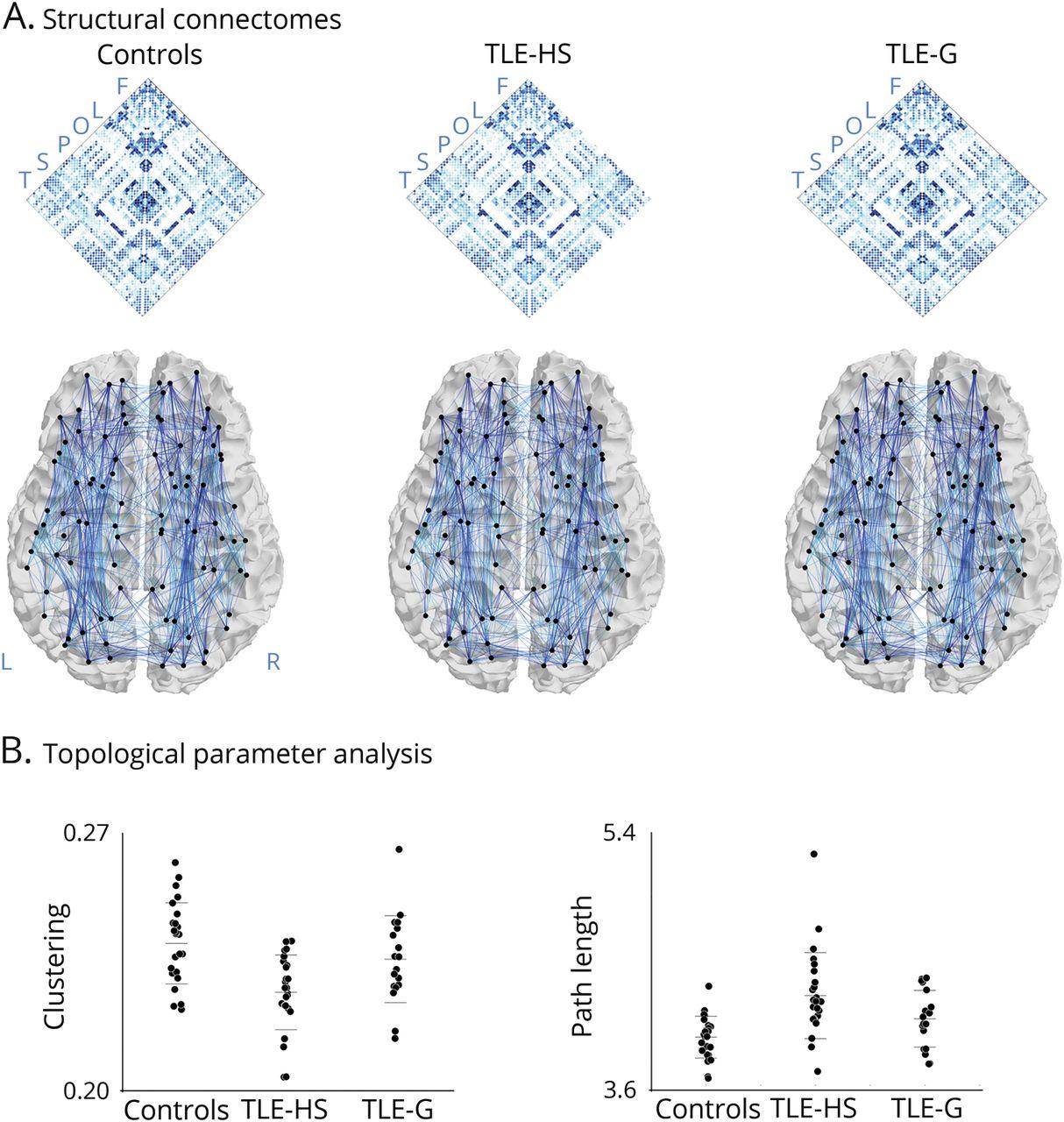 Temporal lobe epilepsy | Neurology