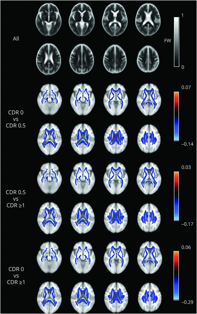 Cerebral white matter free water   Neurology