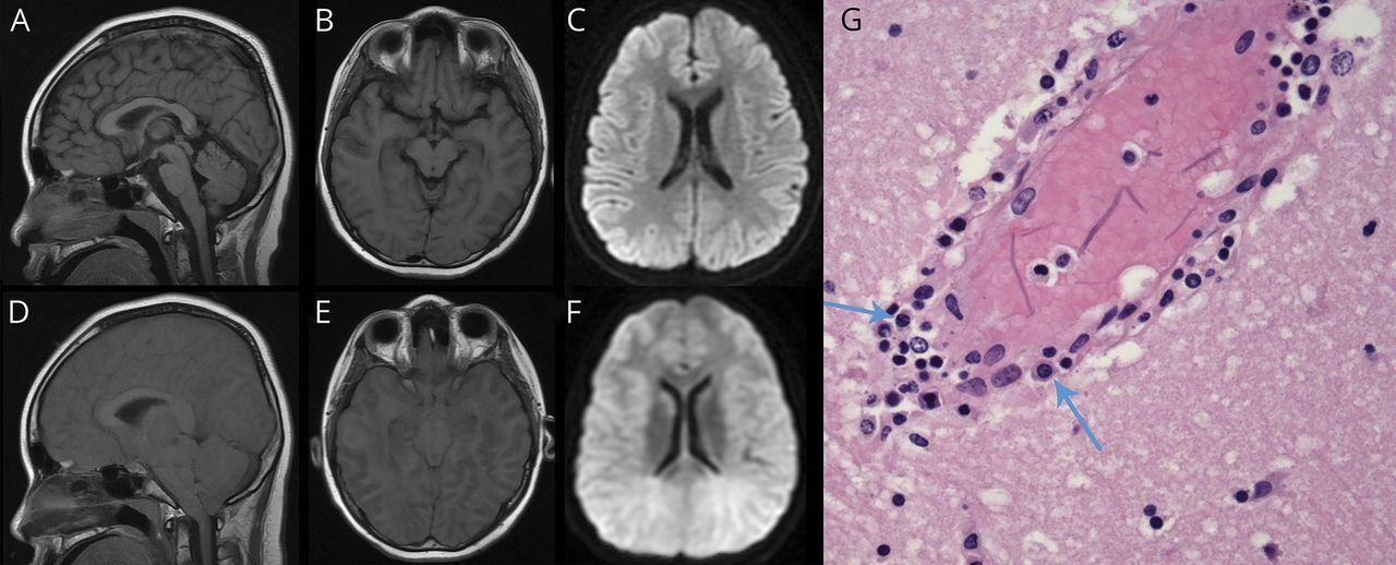 A Rapidly Fatal Case Of Anti Nmda Receptor Encephalitis Due To