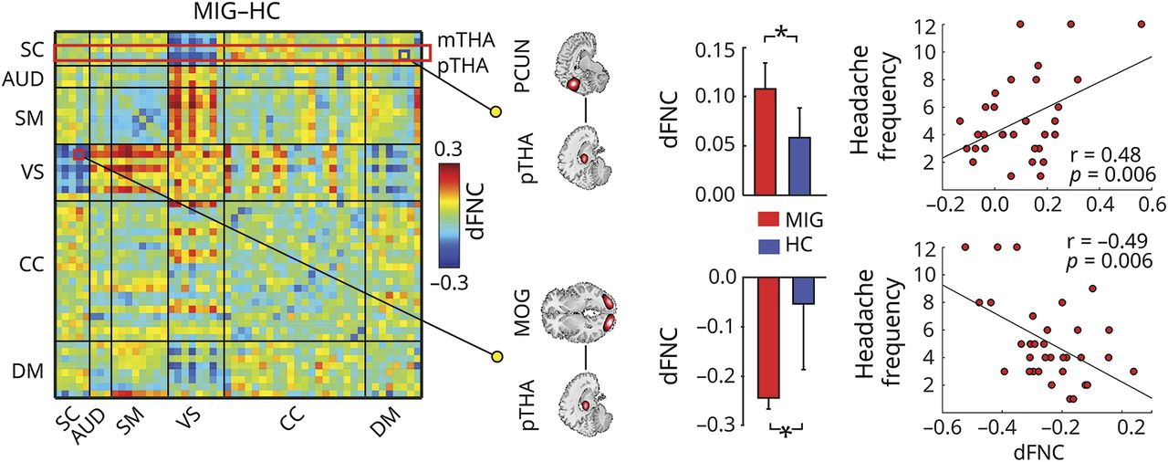 Abnormal thalamocortical network dynamics in migraine
