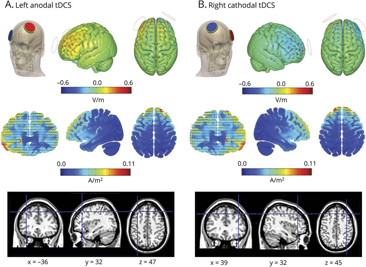 Language boosting by transcranial stimulation in progressive