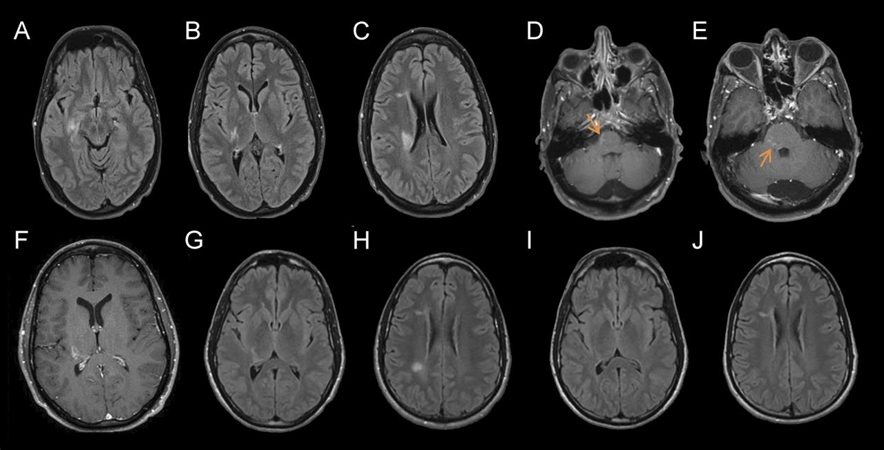 Mystery Case Anti Nmdar Encephalitis With Overlapping