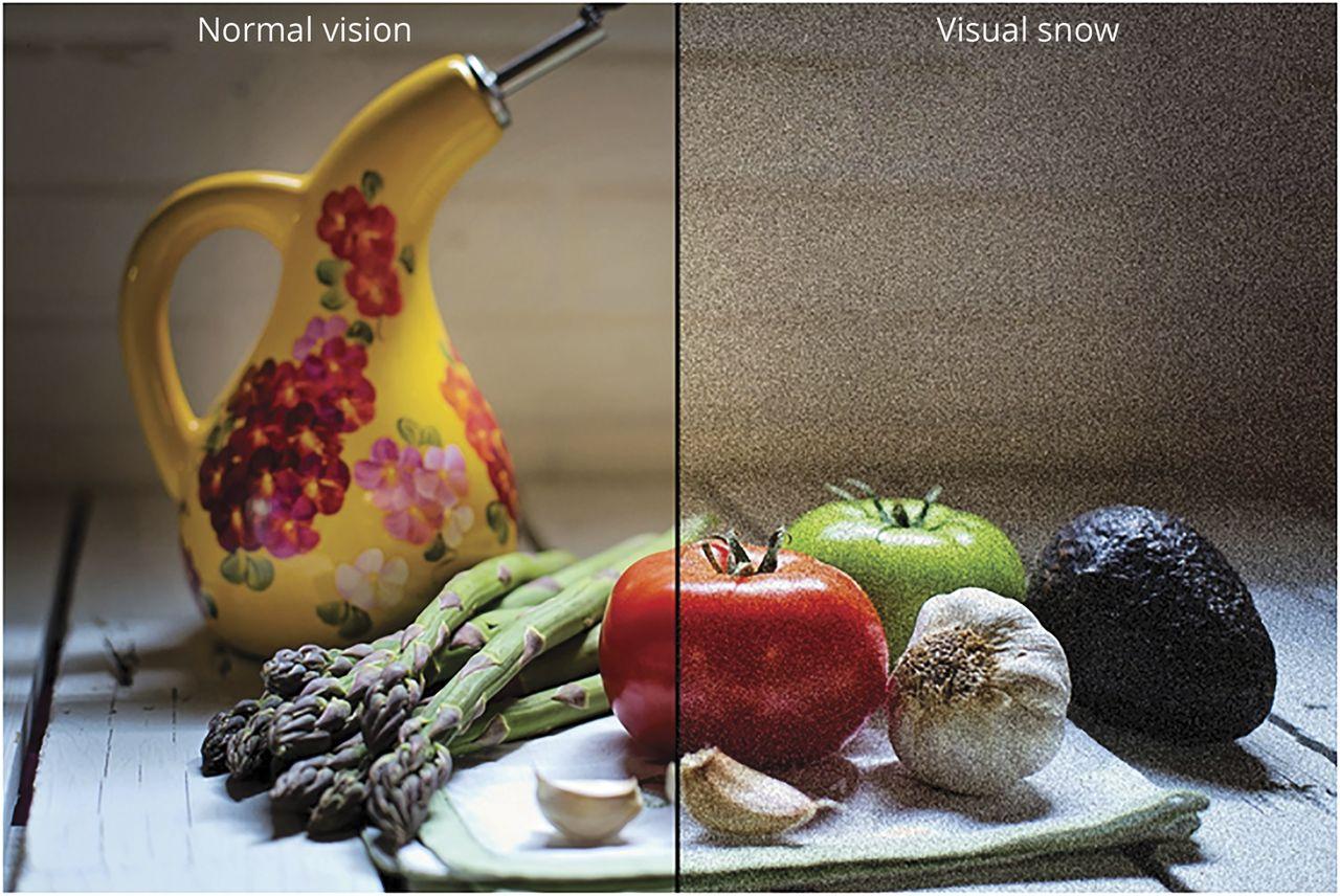 Visual snow syndrome   Neurology