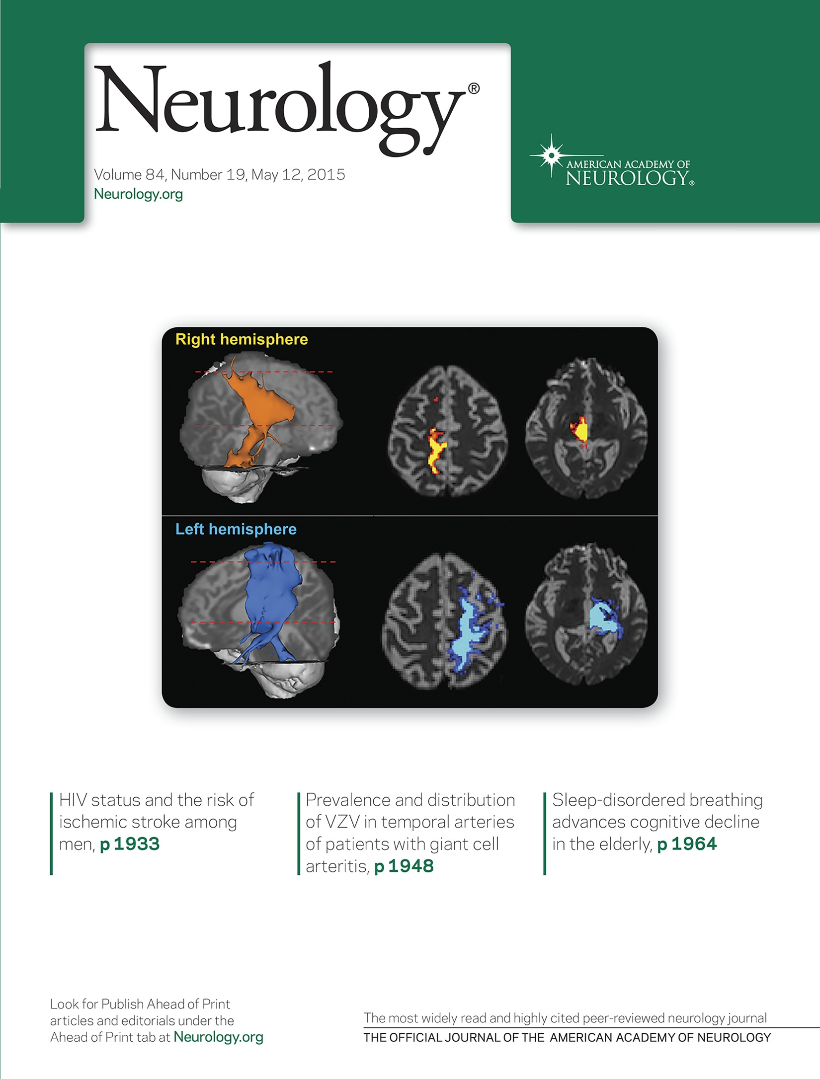 HIV status and the risk of ischemic stroke among men | Neurology