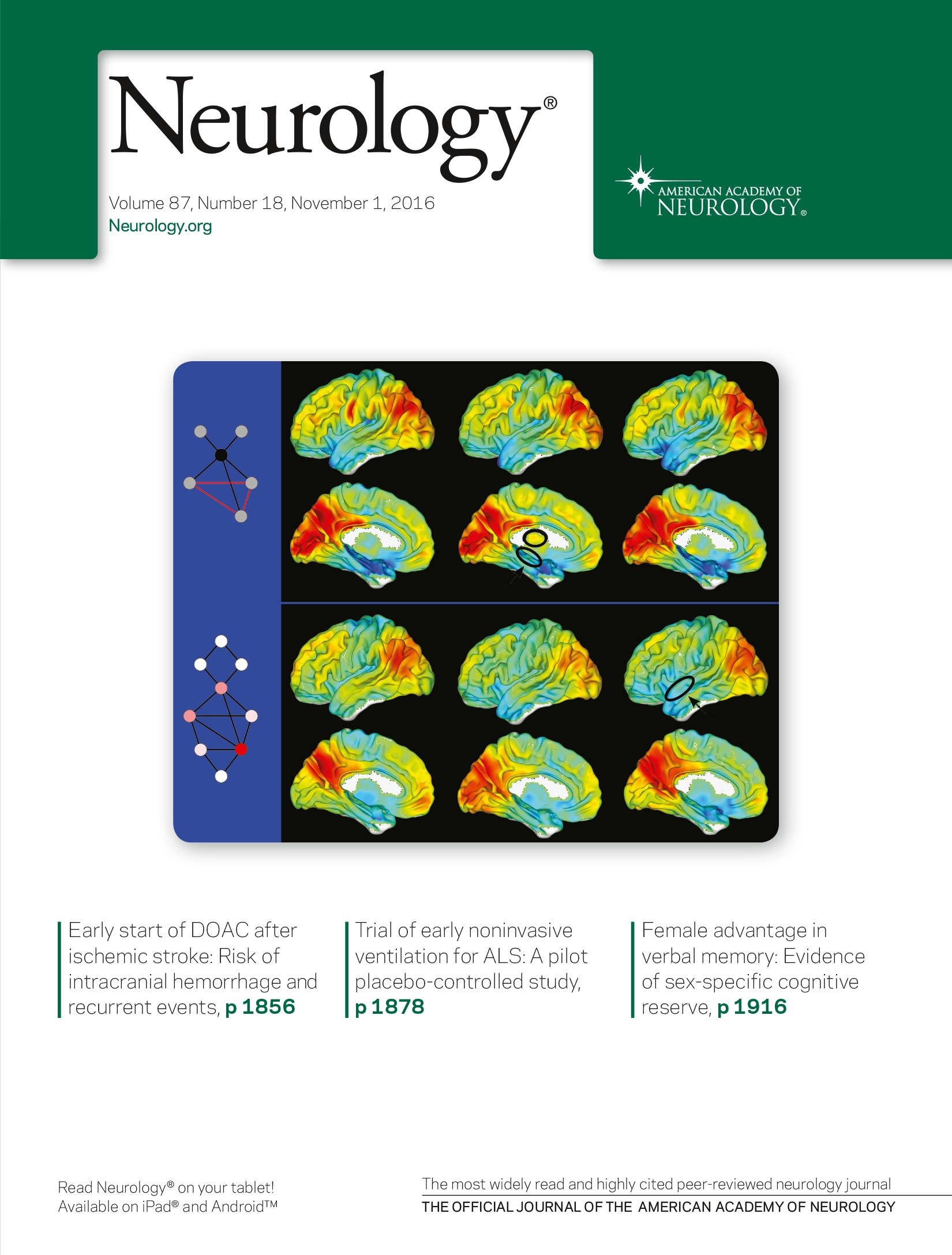 Emerging Subspecialties in Neurology: Pediatric stroke and