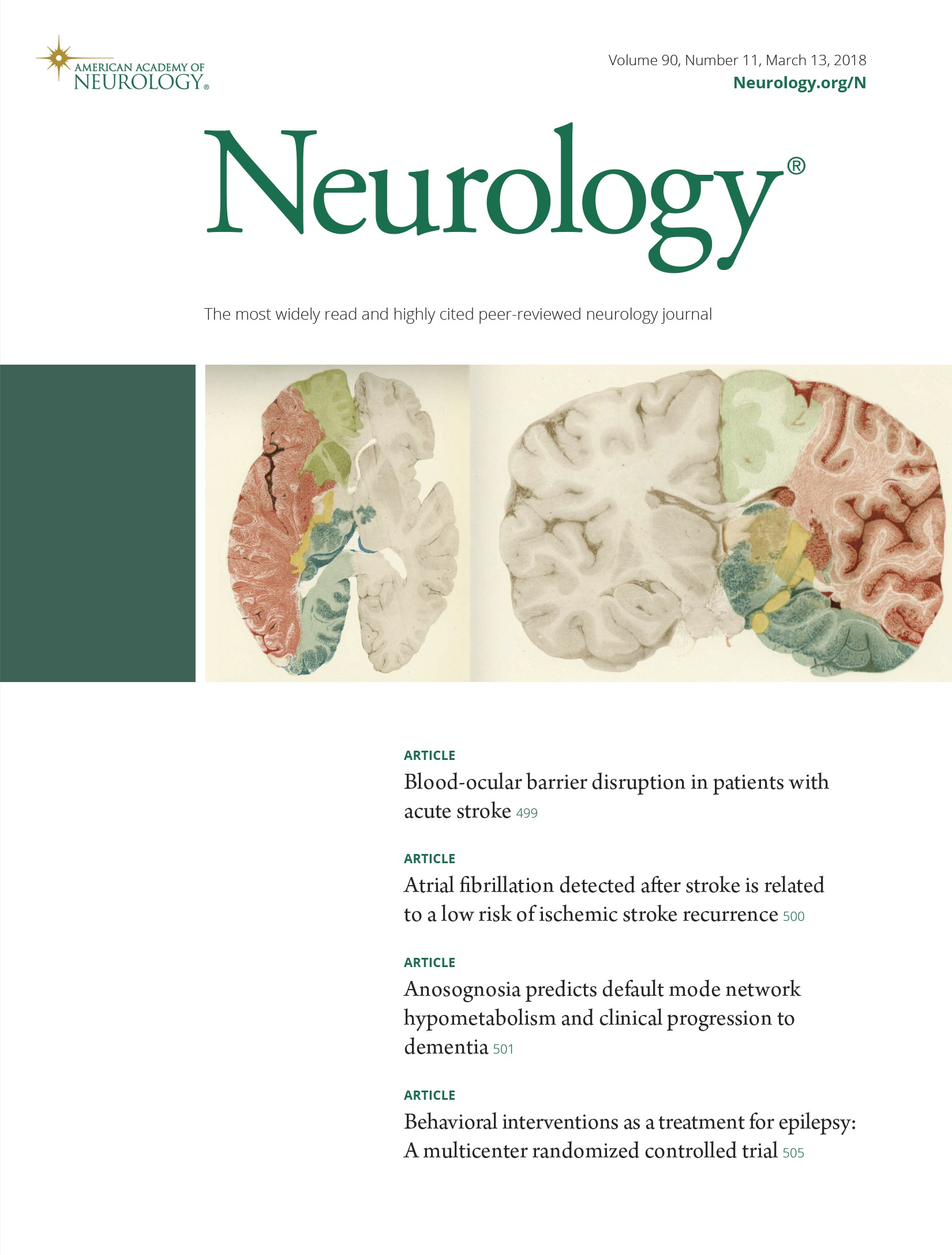 Anosognosia predicts default mode network hypometabolism and ...