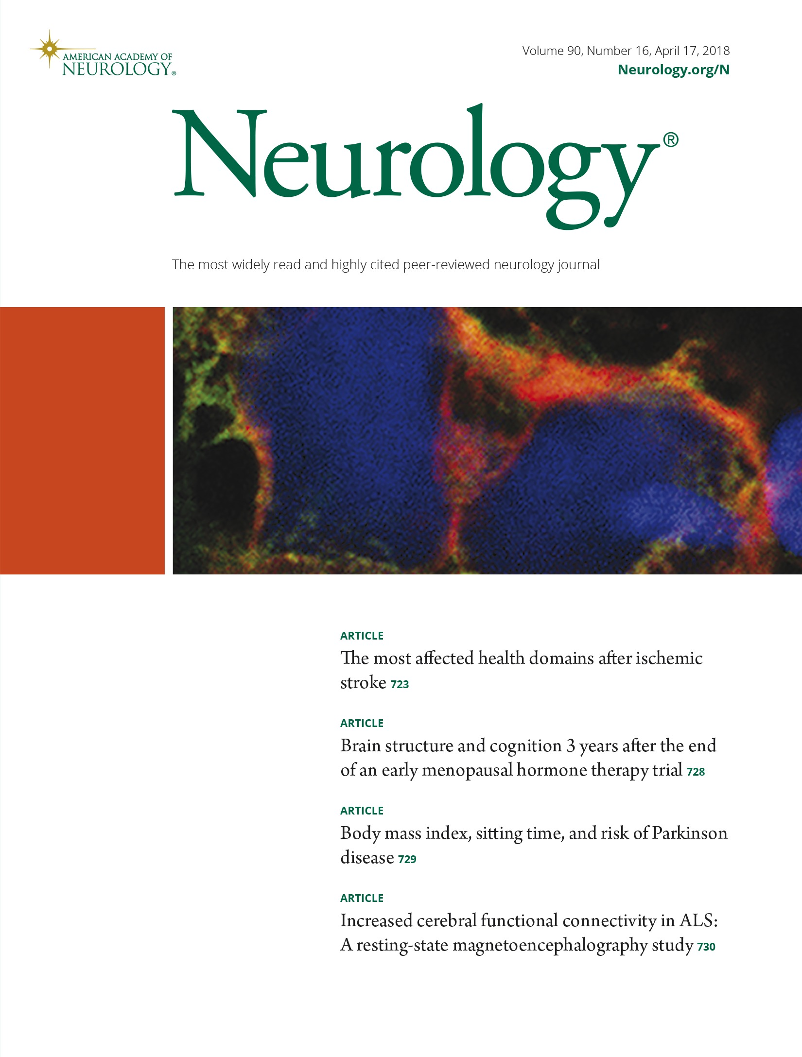 Increased cerebral functional connectivity in ALS | Neurology