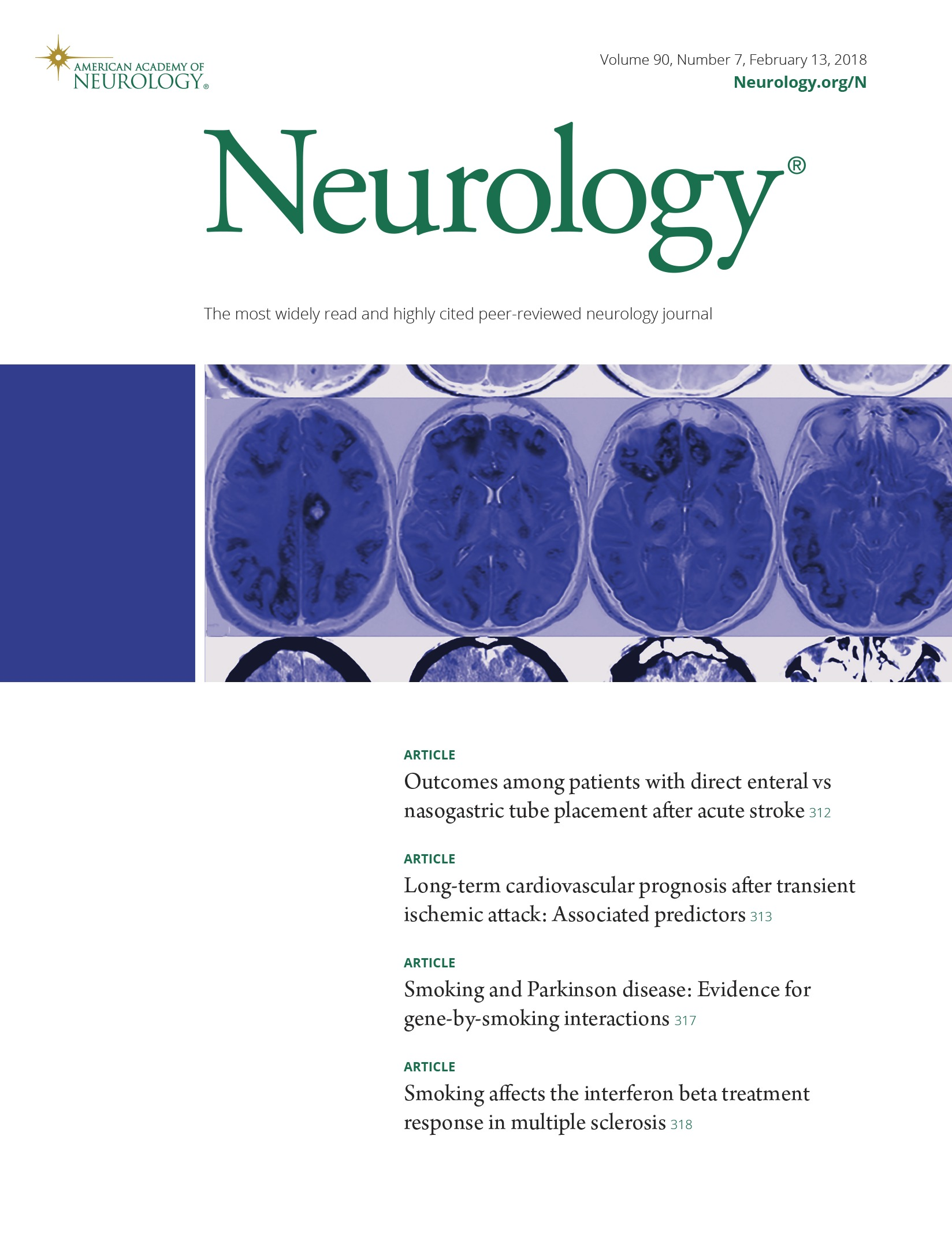 Smoking affects the interferon beta treatment response in multiple