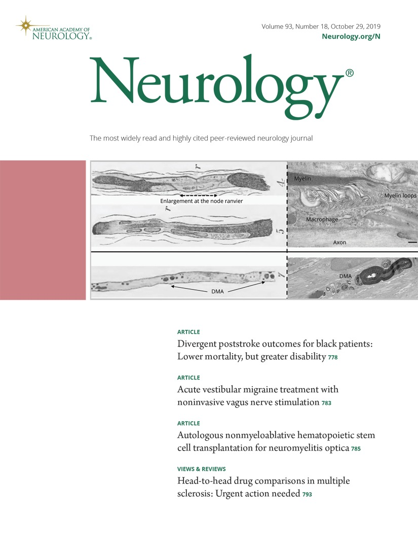 Acute vestibular migraine treatment with noninvasive vagus nerve stimulation